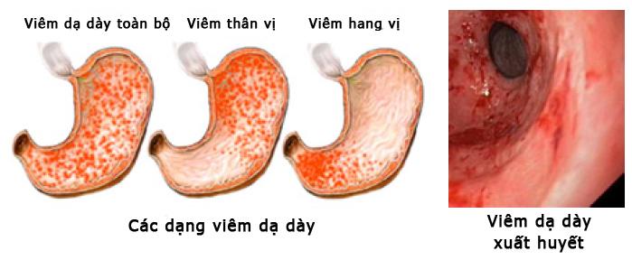 cách điều trị viêm loét dạ dày tá tràng
